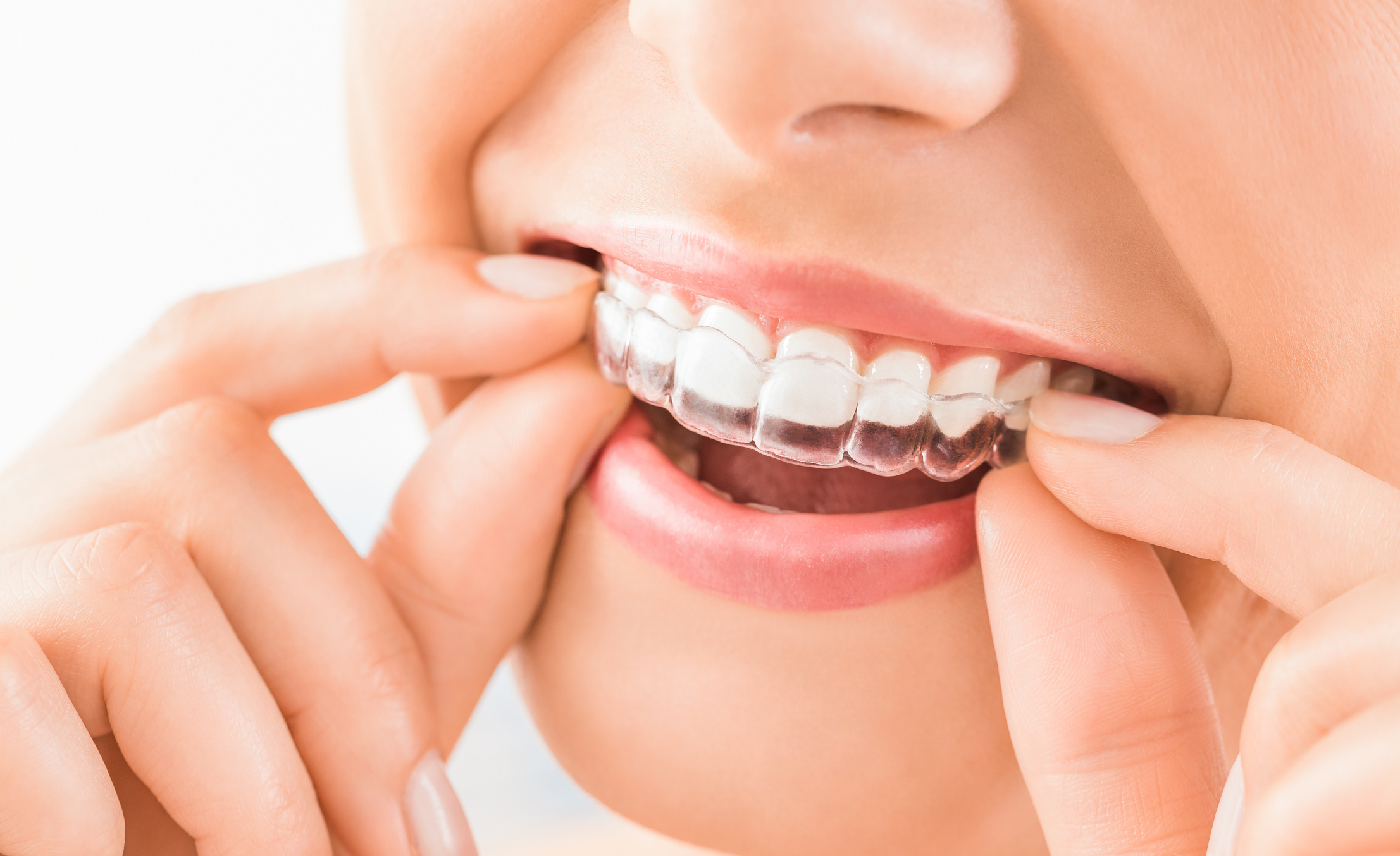 Invisalign Treatment Procedures